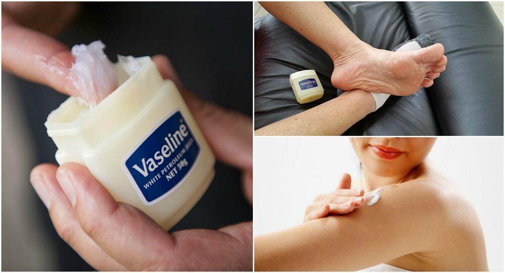 Usos de la vaselina que te convertirán en reina de belleza - Reduce la irritación